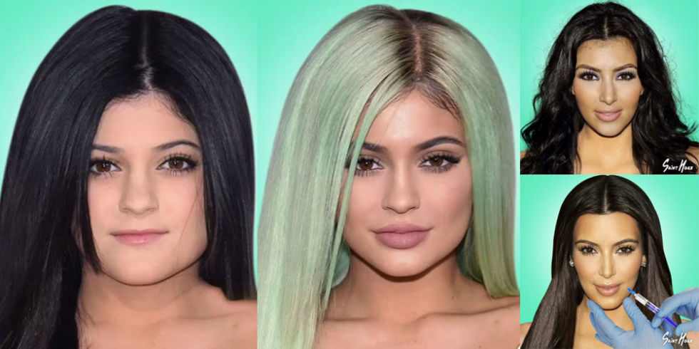 KARDASHIAn-surgery-before-after